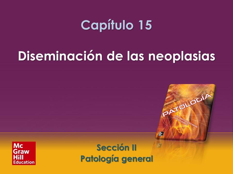 Capítulo 15 Diseminación de las neoplasias
