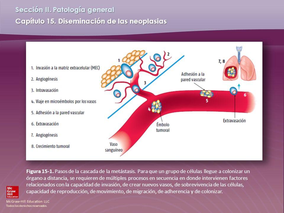 Figura 15-1. Pasos de la cascada de la metástasis