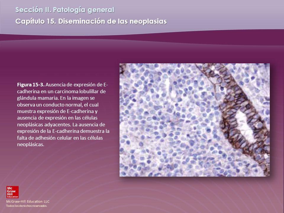 Figura 15-3.Ausencia de expresión de E-cadherina en un carcinoma lobulillar de glándula mamaria.