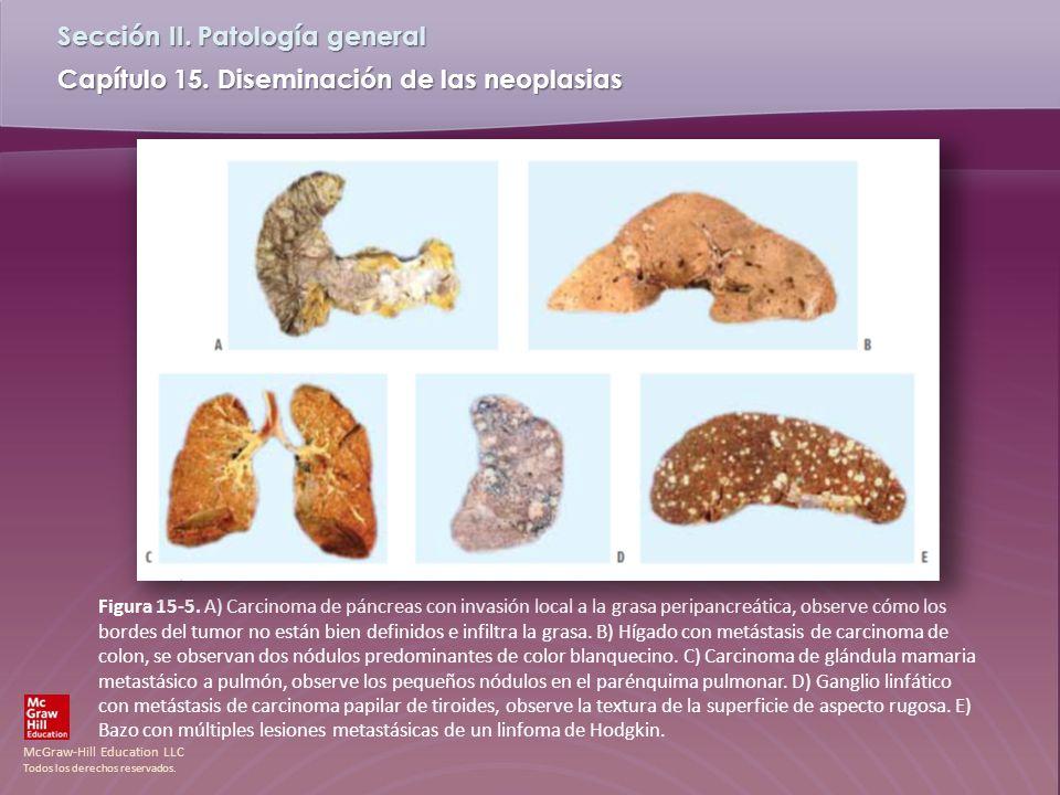 Figura 15-5.