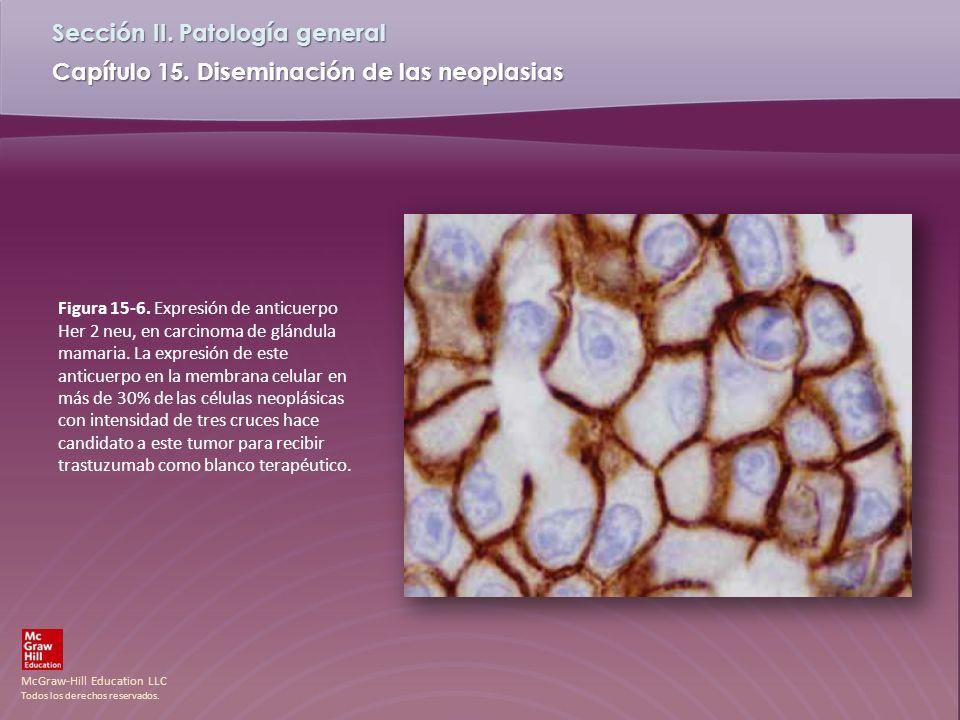 Figura 15-6.Expresión de anticuerpo Her 2 neu, en carcinoma de glándula mamaria.