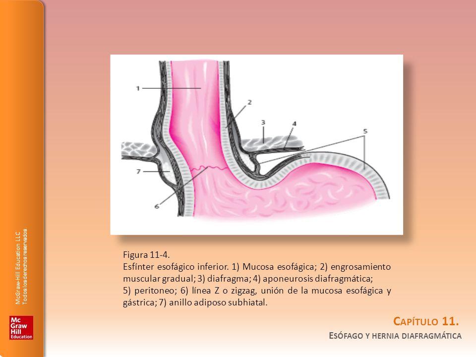 Figura 11-4.Esfínter esofágico inferior. 1) Mucosa esofágica; 2) engrosamiento muscular gradual; 3) diafragma; 4) aponeurosis diafragmática;