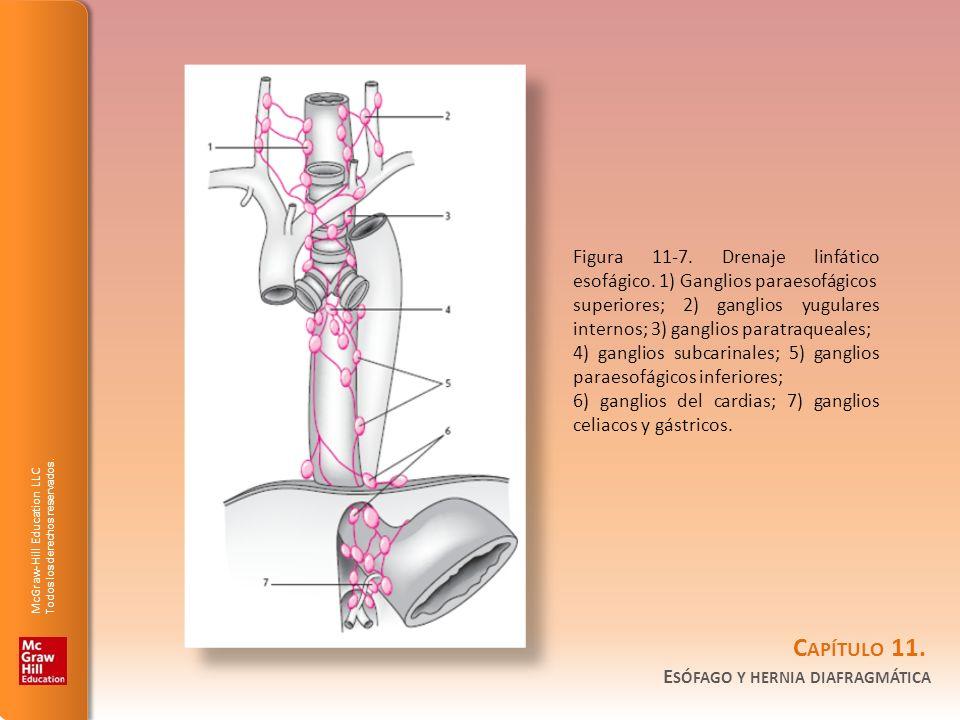 Figura 11-7. Drenaje linfático esofágico. 1) Ganglios paraesofágicos