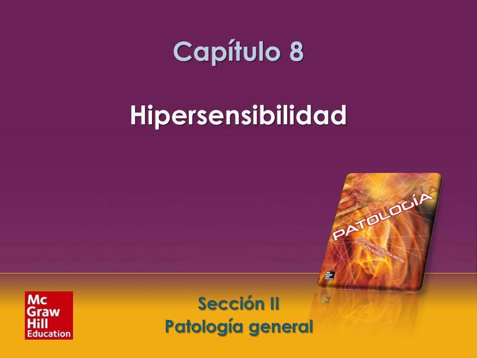Capítulo 8 Hipersensibilidad