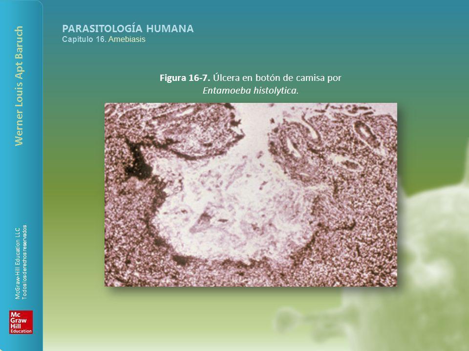 Figura 16-7. Úlcera en botón de camisa por Entamoeba histolytica.