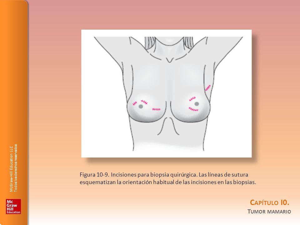 Figura 10-9. Incisiones para biopsia quirúrgica. Las líneas de sutura