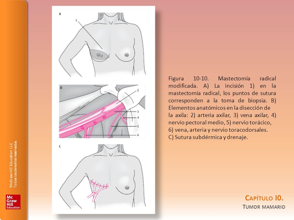 Figura 10-10. Mastectomía radical modificada