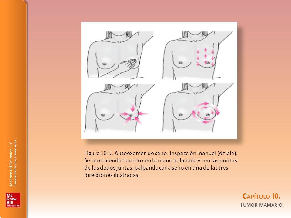 Figura 10-5. Autoexamen de seno: inspección manual (de pie)