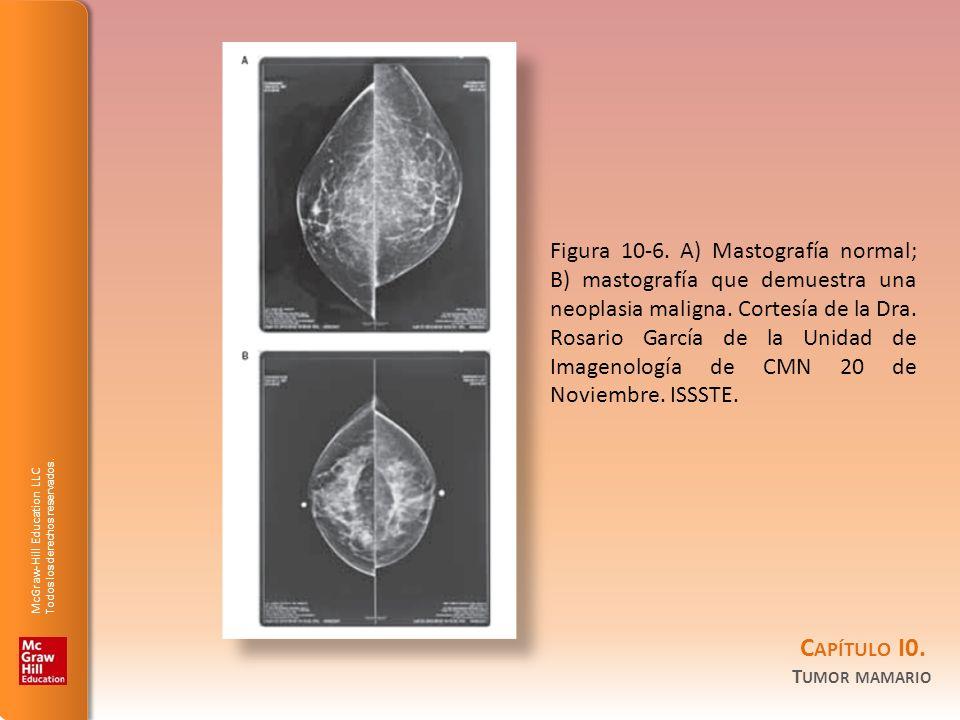 Figura 10-6. A) Mastografía normal; B) mastografía que demuestra una neoplasia maligna.