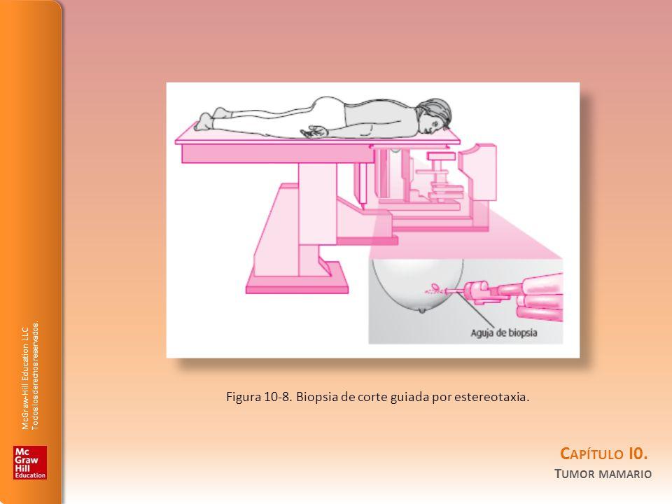 Figura 10-8. Biopsia de corte guiada por estereotaxia.