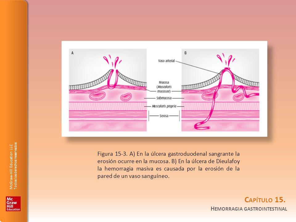 Figura 15-3. A) En la úlcera gastroduodenal sangrante la erosión ocurre en la mucosa.