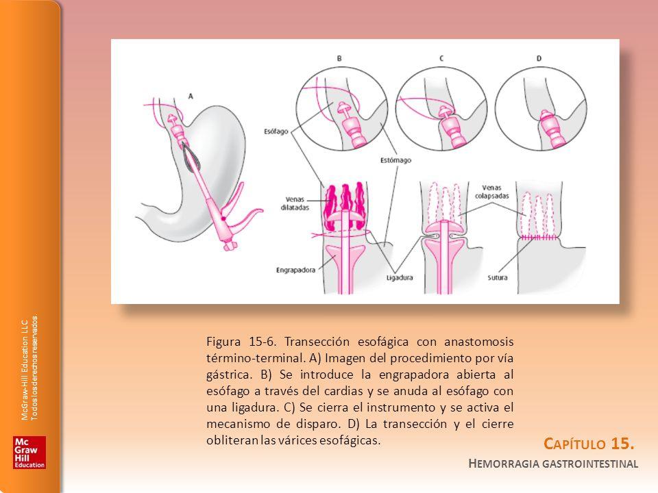 Figura 15-6. Transección esofágica con anastomosis término-terminal