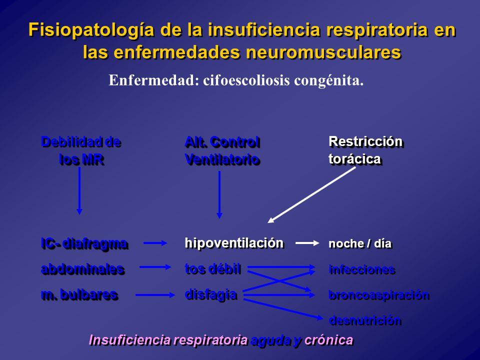 Enfermedad: cifoescoliosis congénita.