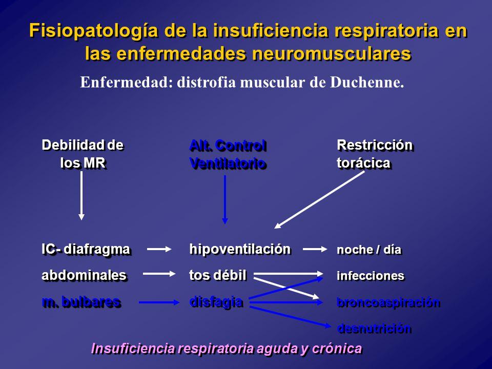 Enfermedad: distrofia muscular de Duchenne.