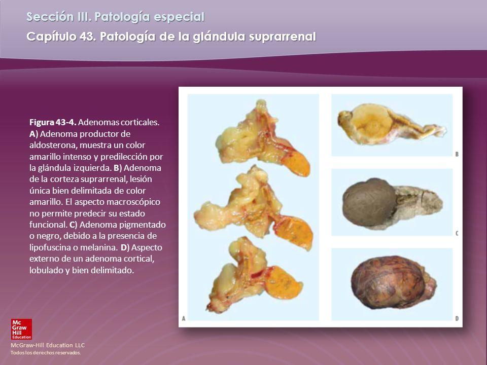 Figura 43-4. Adenomas corticales