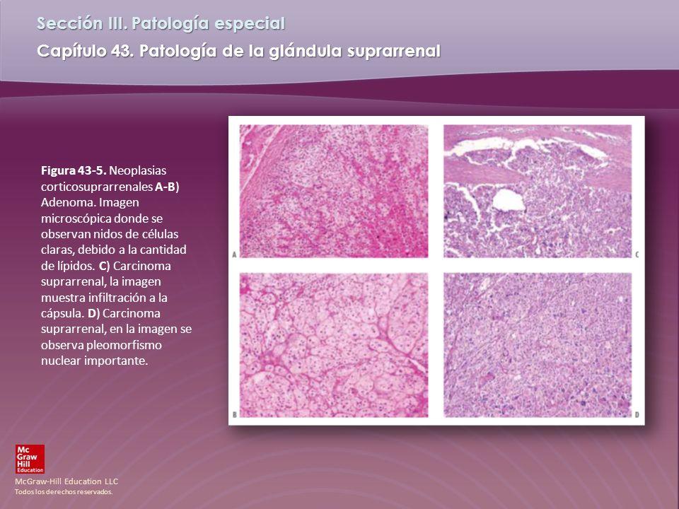 Figura 43-5. Neoplasias corticosuprarrenales A-B) Adenoma
