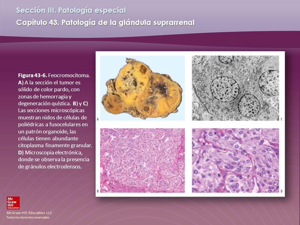 Figura 43-6. Feocromocitoma