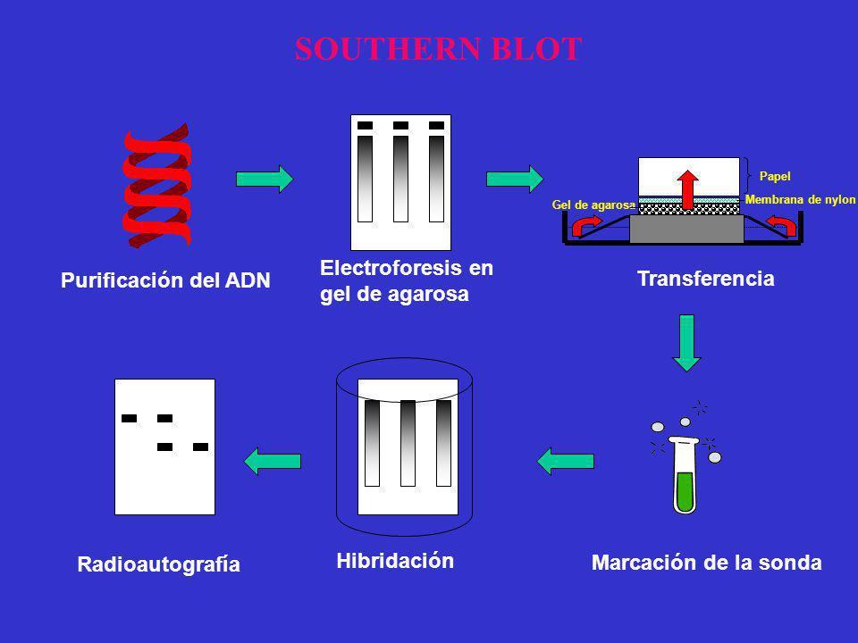 SOUTHERN BLOT Electroforesis en Purificación del ADN gel de agarosa