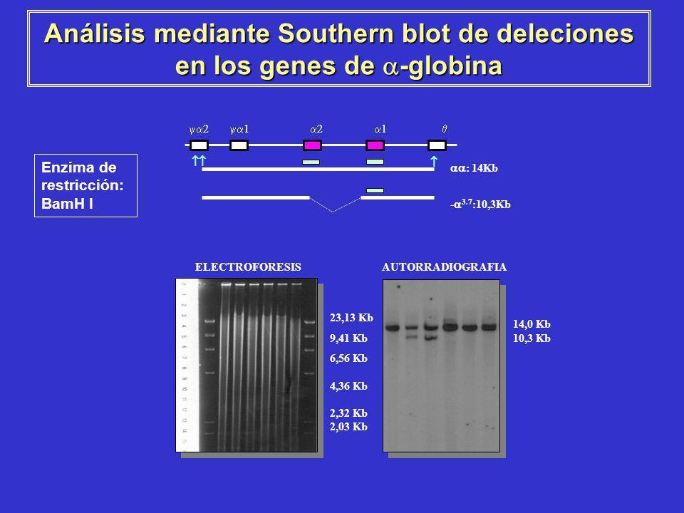Análisis mediante Southern blot de deleciones en los genes de -globina