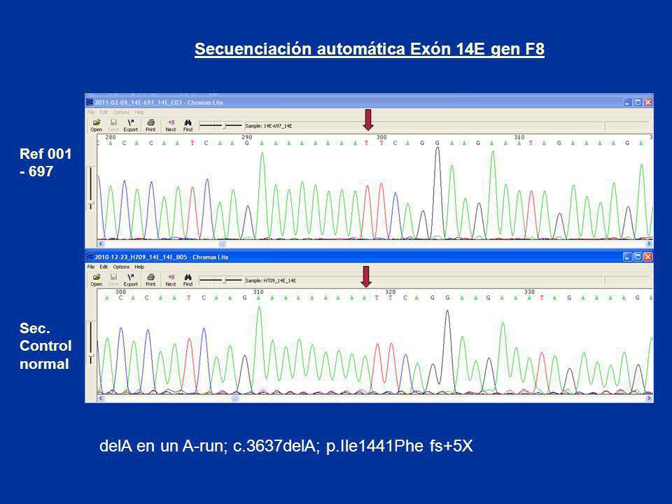 Secuenciación automática Exón 14E gen F8