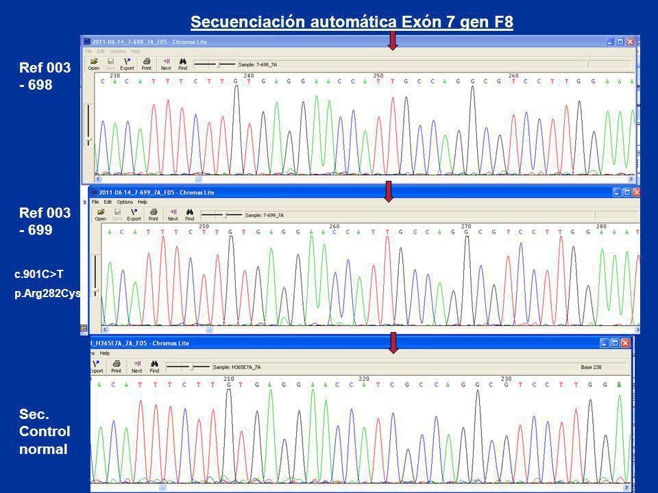 Secuenciación automática Exón 7 gen F8