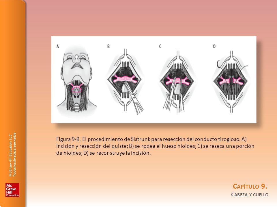 Figura 9-9.El procedimiento de Sistrunk para resección del conducto tirogloso.