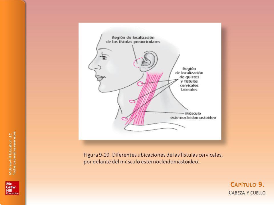 Figura 9-10.