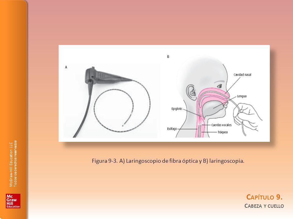 Figura 9-3. A) Laringoscopio de fibra óptica y B) laringoscopia.