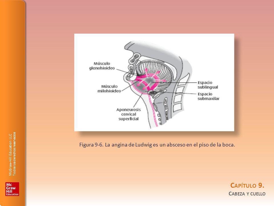 Figura 9-6. La angina de Ludwig es un absceso en el piso de la boca.