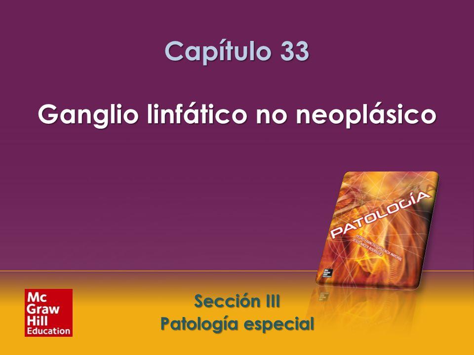 Capítulo 33 Ganglio linfático no neoplásico