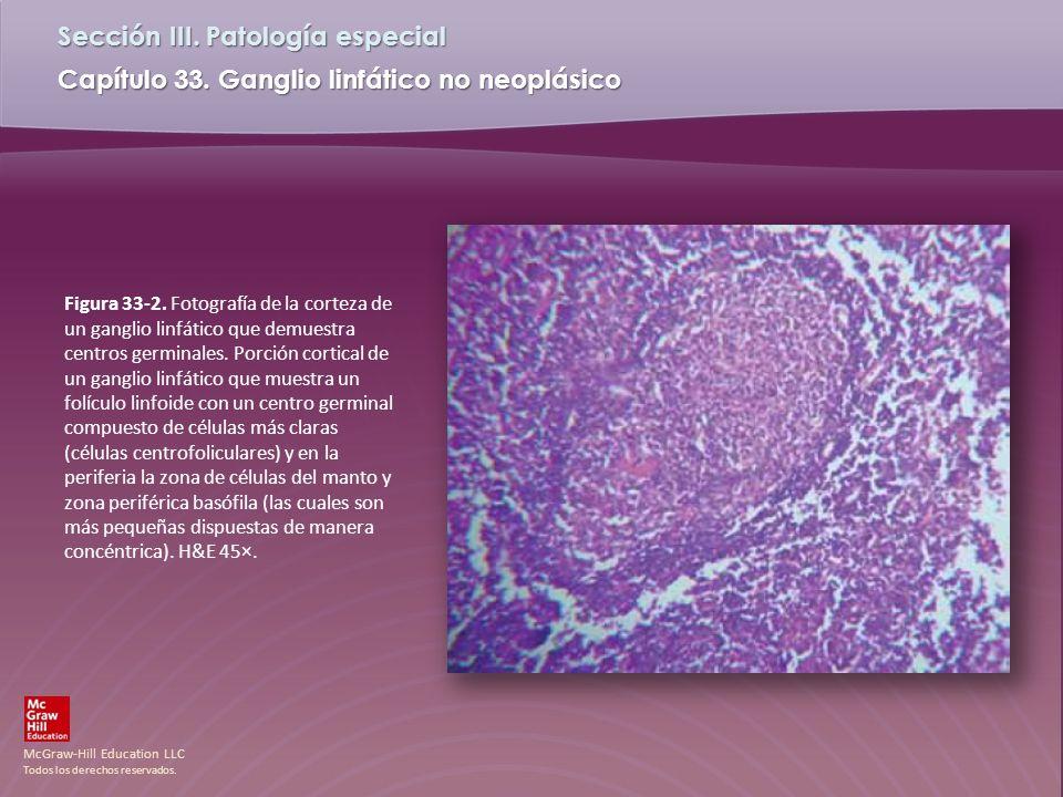 Figura 33-2. Fotografía de la corteza de un ganglio linfático que demuestra centros germinales.