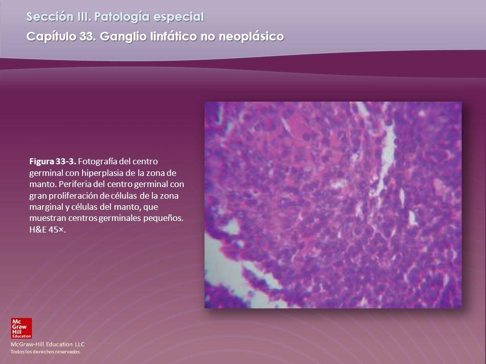 Figura 33-3. Fotografía del centro germinal con hiperplasia de la zona de manto.