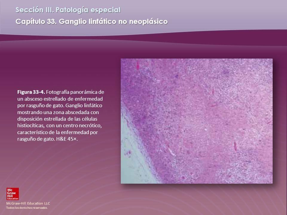 Figura 33-4.Fotografía panorámica de un absceso estrellado de enfermedad por rasguño de gato.