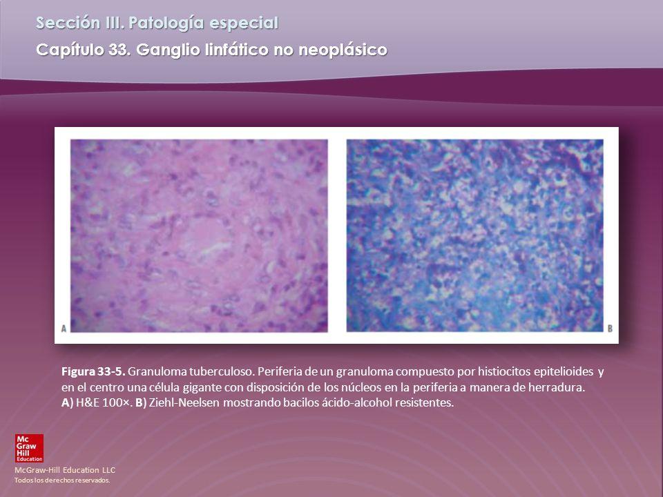 Figura 33-5. Granuloma tuberculoso