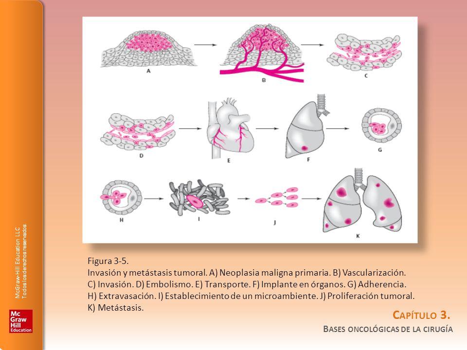 Figura 3-5. Invasión y metástasis tumoral. A) Neoplasia maligna primaria. B) Vascularización.