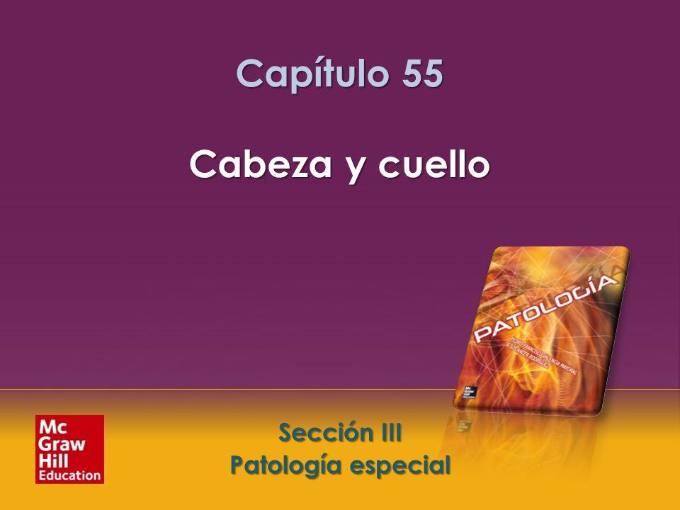 Capítulo 55 Cabeza y cuello
