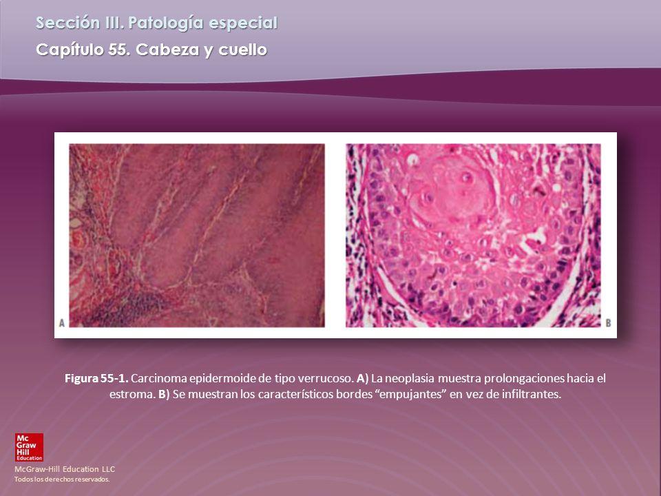 Figura 55-1. Carcinoma epidermoide de tipo verrucoso