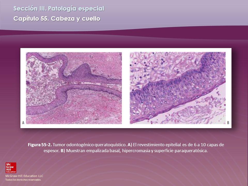 Figura 55-2. Tumor odontogénico queratoquístico