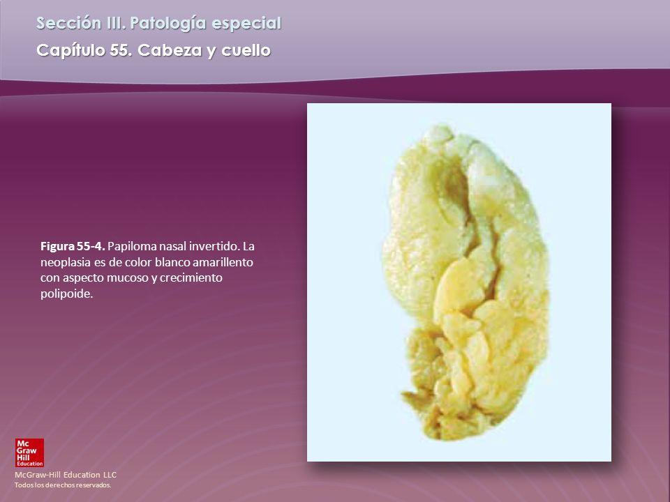 Figura 55-4. Papiloma nasal invertido