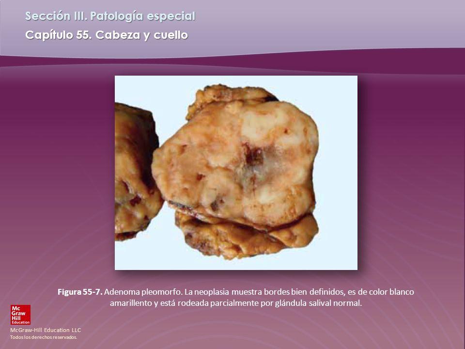 Figura 55-7. Adenoma pleomorfo