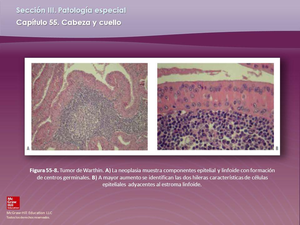 Figura 55-8. Tumor de Warthin