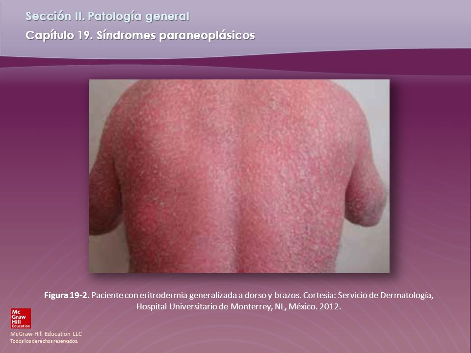 Figura 19-2. Paciente con eritrodermia generalizada a dorso y brazos