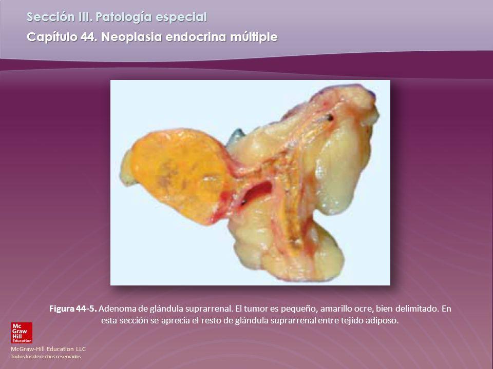 Figura 44-5. Adenoma de glándula suprarrenal