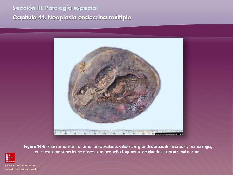 Figura 44-6. Feocromocitoma