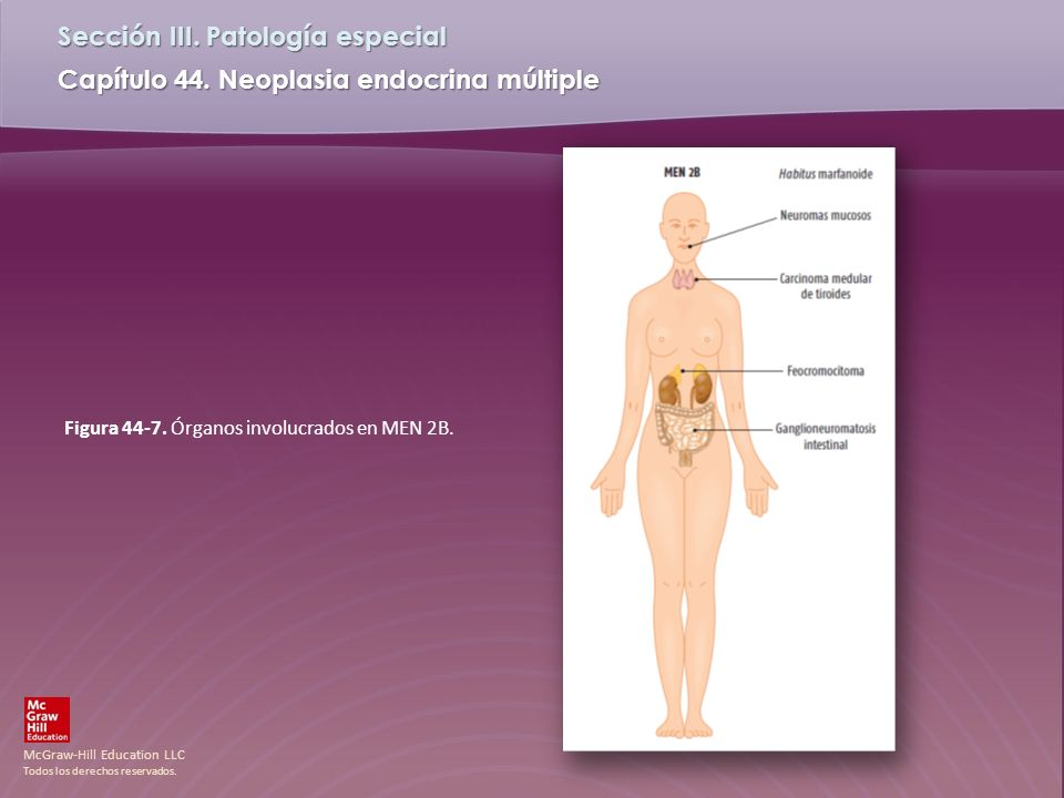Figura 44-7. Órganos involucrados en MEN 2B.