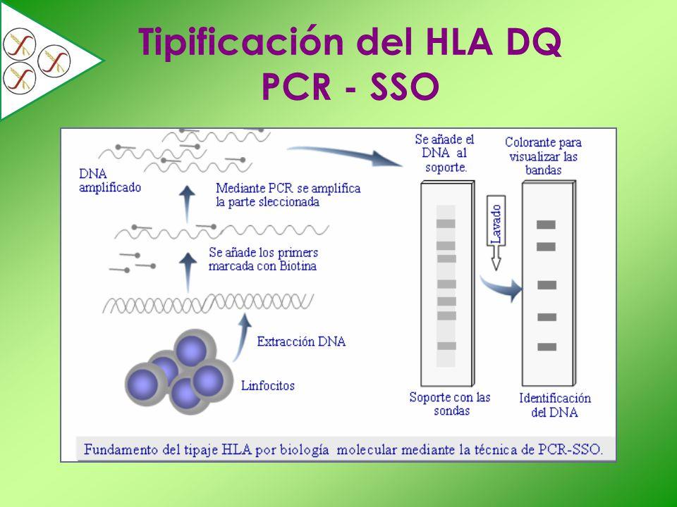 Tipificación del HLA DQ