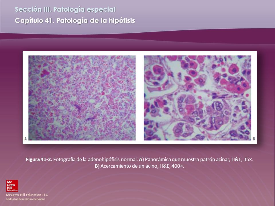 Figura 41-2. Fotografía de la adenohipófisis normal
