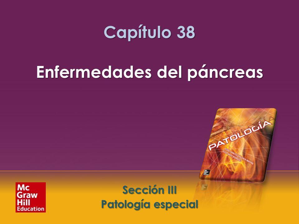 Capítulo 38 Enfermedades del páncreas