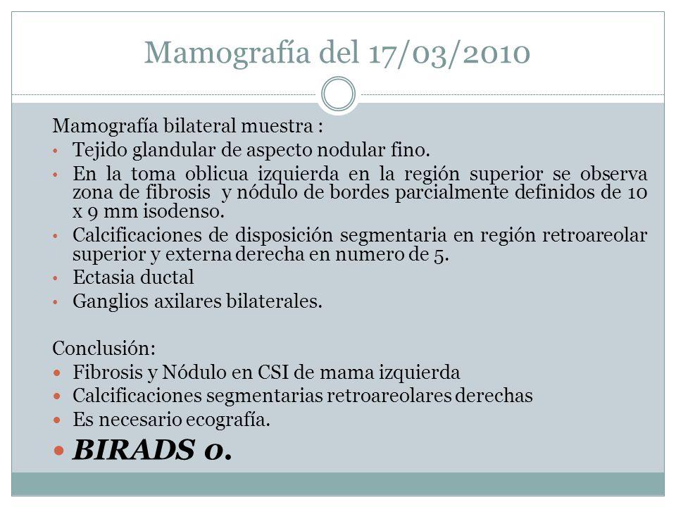 Mamografía del 17/03/2010 BIRADS 0. Mamografía bilateral muestra :