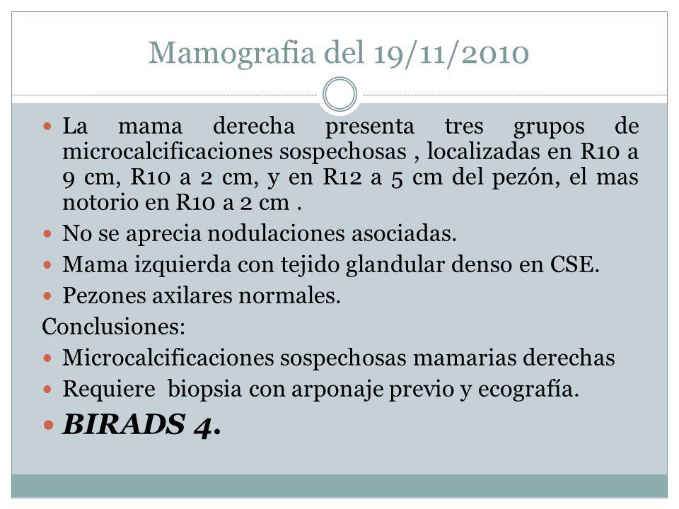Mamografia del 19/11/2010 BIRADS 4.
